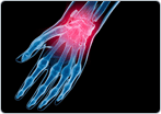 Arthritis of the Wrist