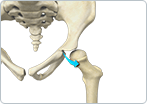 Developmental Dislocation (dysplasia) of the Hip