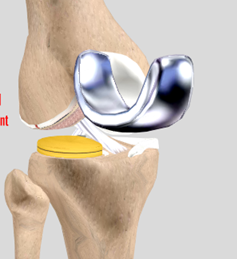Osteotomy Clearwater FL | Uni-Compartmental Knee Arthroplasty Largo FL