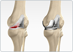 Non-surgical treatments for osteoarthritis of the knee