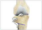 Osteotomy and uni-compartmental knee arthroplasty