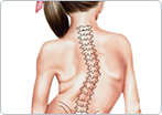 Scoliosis in Children and Adolescents